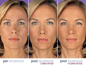 botox_before_after