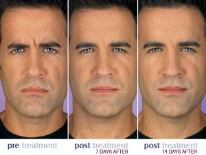 botox_before_after_men