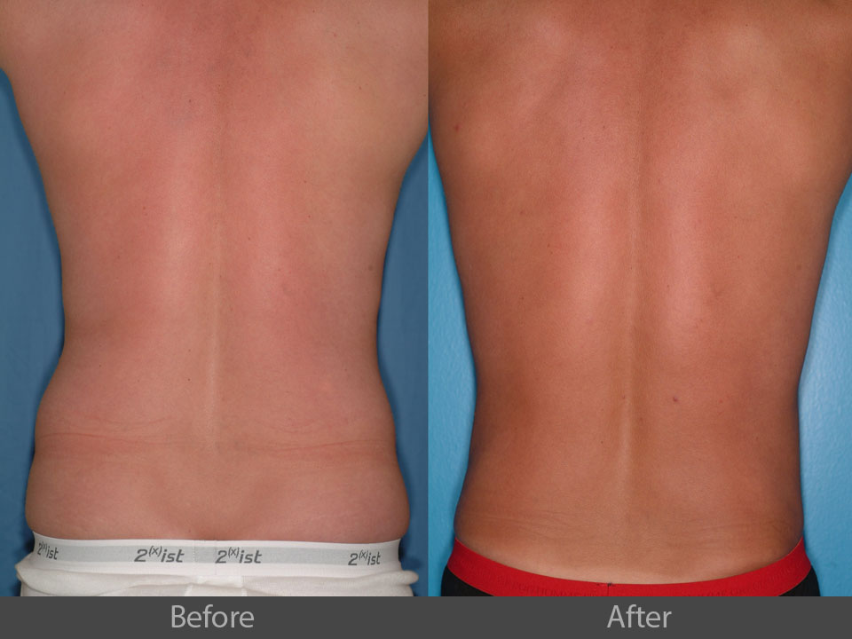 2_back_before_after