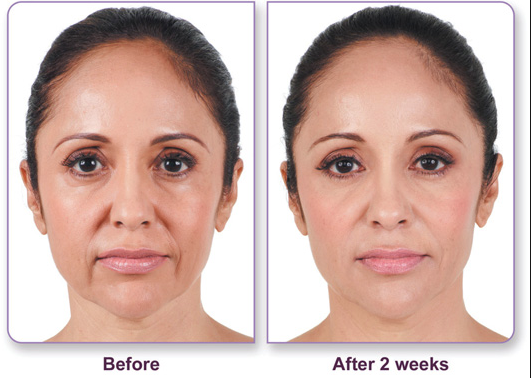 juvederm_before_after_1