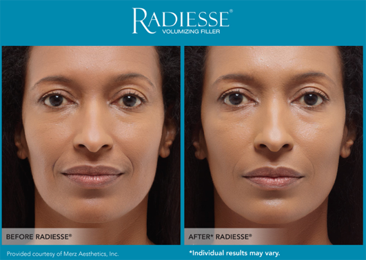 radiesse_before_after