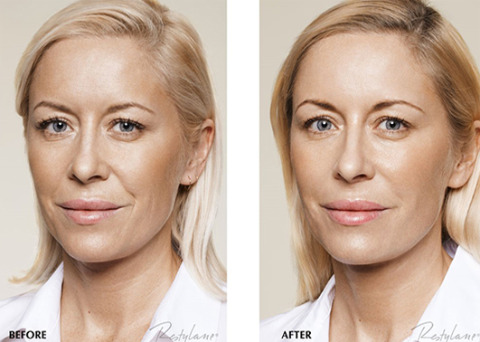 restylane_before_after