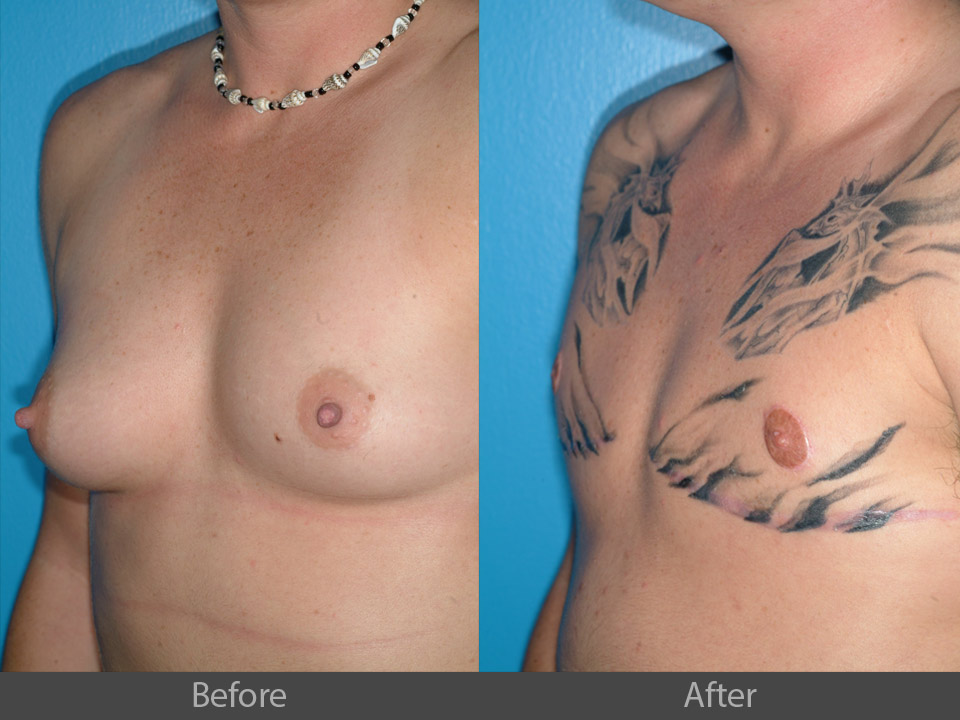 13_angle_before_after