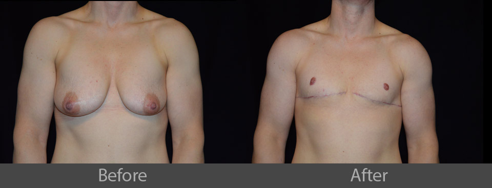 15_front_before_after