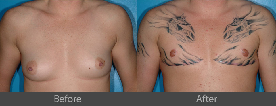 16_front_before_after
