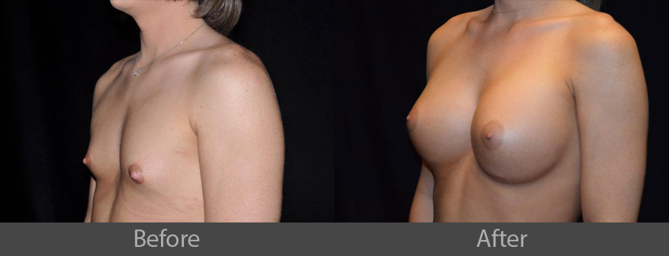 1_angle_before_after
