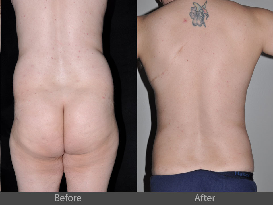 1_back_before_after