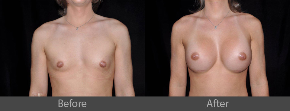 1_front_before_after