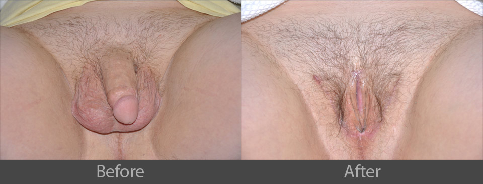 2_before_after