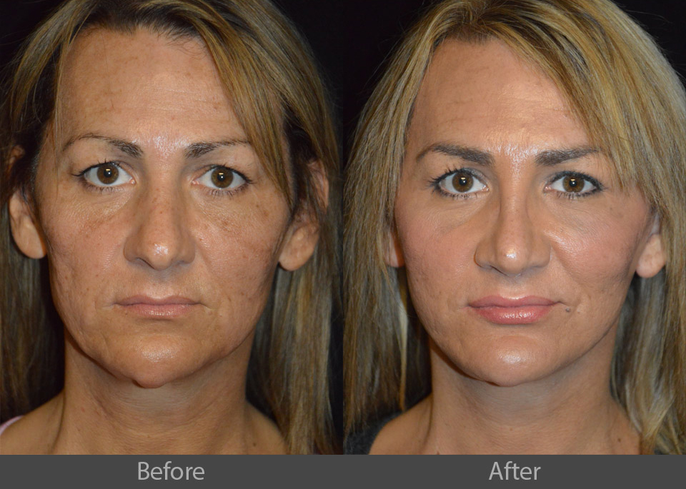 2_front_before_after