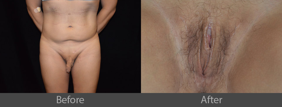 3_before_after
