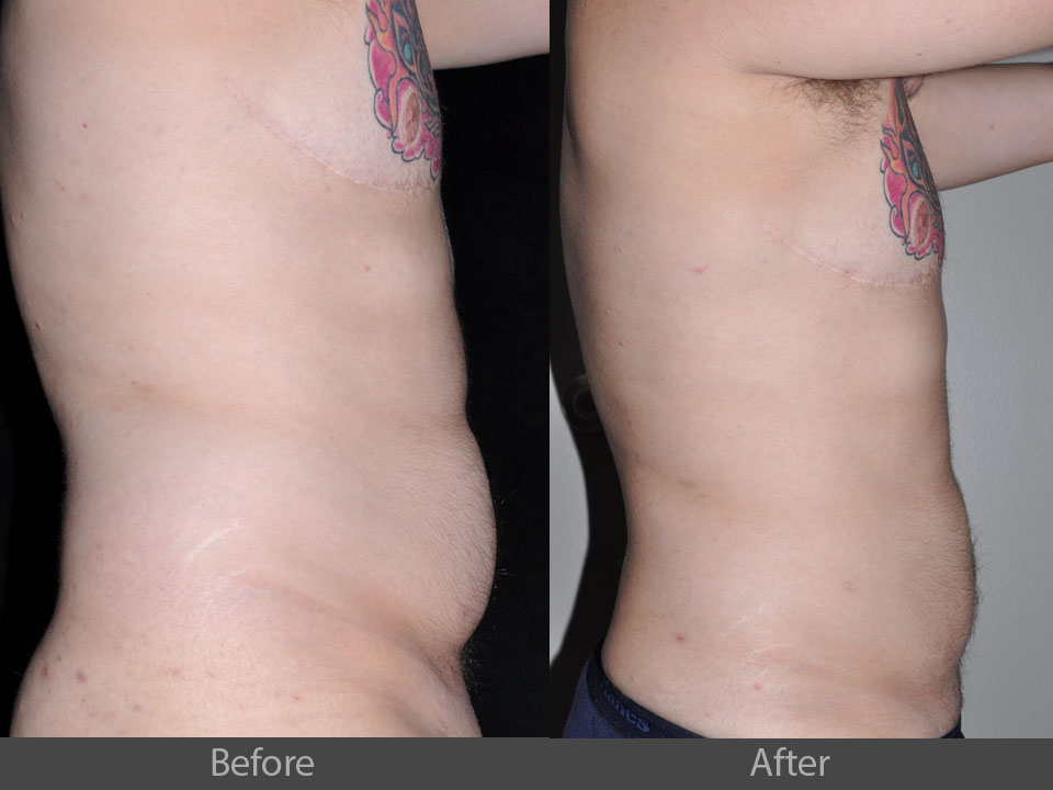 3_side_before_after