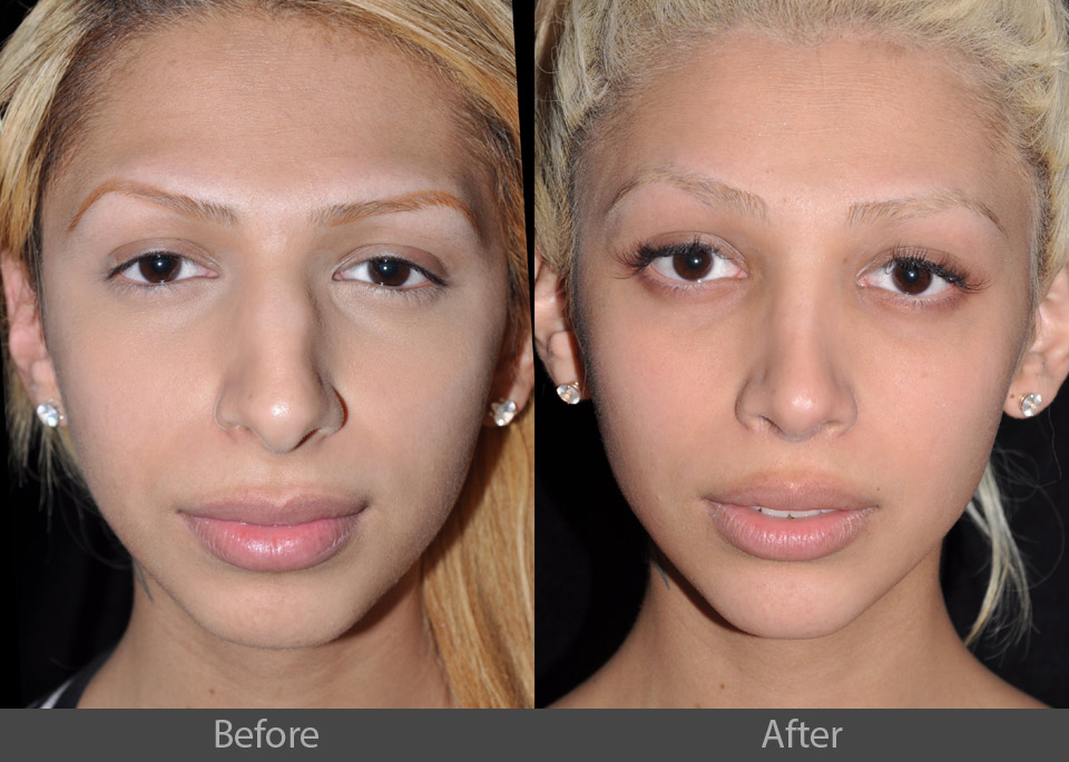 4_front_before_after