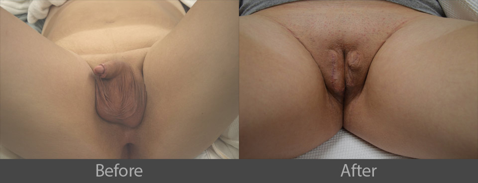 6_before_after
